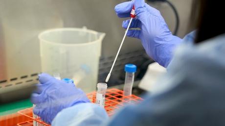 """''A taxa de multiplicação de vírus é naturalmente muito alta. Consequentemente, a possibilidade de ocorrerem mutações genéticas são elevadas"""""""