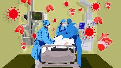 Ilustração de pessoa em leito de hospital, ao lado de três profissionais de saúde e aparelhos