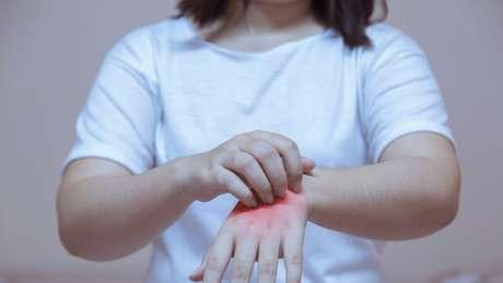 Dermatologistas dizem que estresse causado pelo isolamento social durante a pandemia é um gatilho para o desenvolvimento de problemas de pele