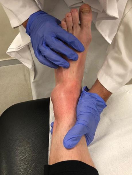 Crutchlow compartilhou uma foto de como ficou o seu pé