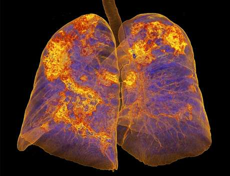 Scans de pulmões infectados com coronavírus mostram áreas de pneumonia