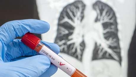Para a OMS, um bom sistema de teste e rastreamento é a chave para conter o vírus