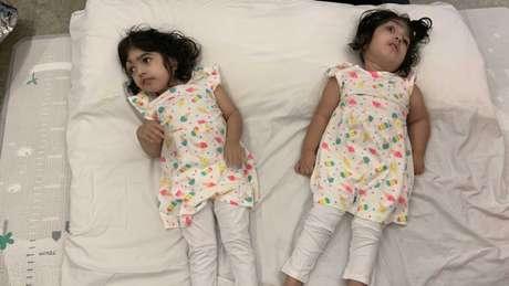 Safa e Marwa tiveram alta do hospital cinco meses após a cirurgia, mas continuaram morando em Londres por um tempo