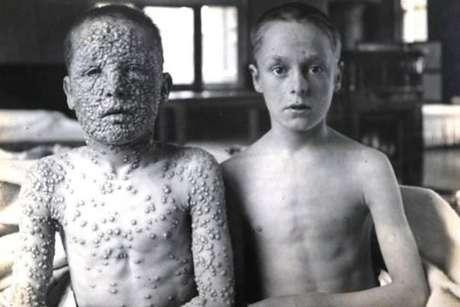 Dois garotos com varíola. O da esquerda não foi vacinado. O da direita foi.