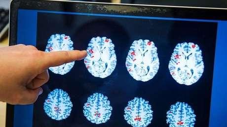 Ao longo da vida, nosso cérebro se transforma de maneira constante