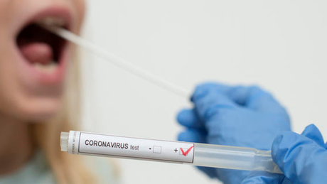 Desde agosto, Brasil diminui de 10 a 15% ao mês número de testes realizados para detectar a covid-19