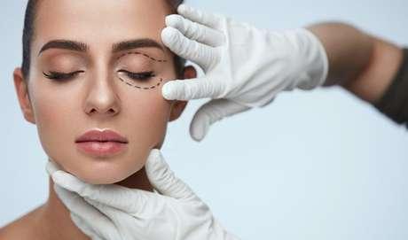 Erro muito comum em blefaroplastia (cirurgia estética das pálpebras) é retirar o excesso de pele sem levar em consideração a posição das sobrancelhas.