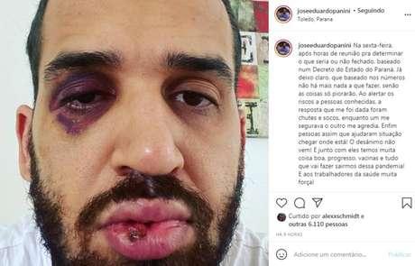 Infectologista José Eduardo Panini disse ter sido agredido depois de tentar alertar pessoassobre os riscos de contágio do coronavírus.