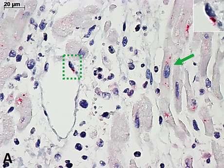 Coração de criança com miocardite pela covid-19, observado pelo microscópio comum. A coloração vermelha marca a infecção pelo vírus SARS-CoV-2. No quadrado pontilhado em verde (e no detalhe): célula de vaso sanguíneo. Na seta verde: célula de músculo cardíaco.