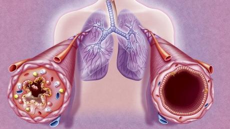 A asma é uma doença crônica em que os brônquios, tubos por onde o ar passa, sofrem com inflamações e podem fechar (como ilustrado à esquerda) durante as crises. Isso causa falta de ar e outras complicações