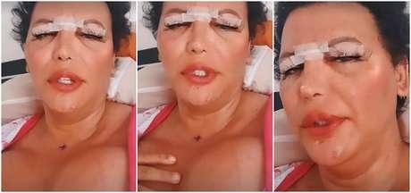 Luisa Marilac na primeira aparição na internet após a cirurgia: complicações do silicone industrial colocaram sua vida em risco