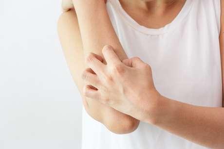 O sintoma mais comum é a coceira, que pode levar a níveis graves de inflamações no corpo