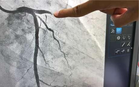 Sintomas vasculares podem estar em pacientes de Covid: veja 5 deles