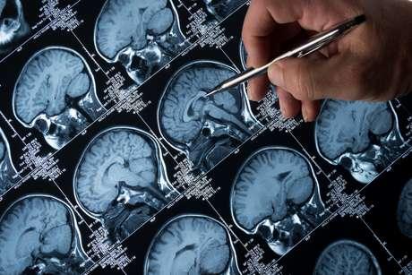 O Aducanumab visa remover os depósitos pegajosos de uma proteína chamada beta amilóide dos cérebros de pacientes em estágios iniciais de Alzheimer