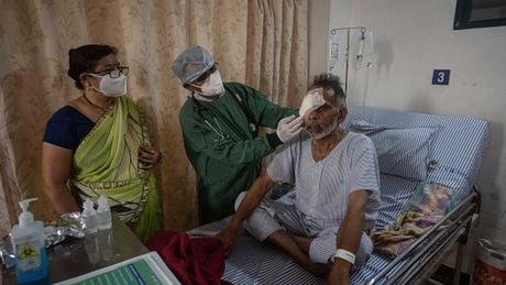 Na Índia houve registros de milhares de casos de mucormicose em pacientes que tiveram a covid-19