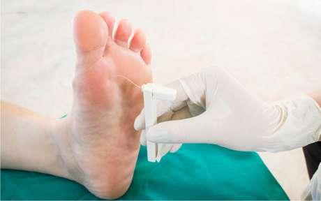 Dia do Diabético: fique alerta com alterações no pé