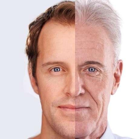 A prega nasolabial é uma das rugas típicas do envelhecimento, causada pela reabsorção óssea.