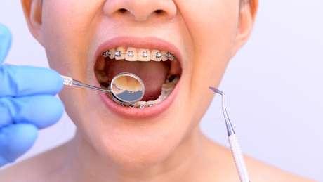 Segundo o cirurgião-dentista existem diversos tipos de aparelhos ortodônticos