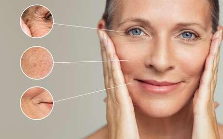 Segundo a dermatologista alguns fatores como dormir bem e parar de fumar ajudam a diminuir as linhas de expressão