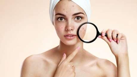 Saiba como amenizar os efeitos da acne!