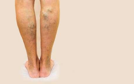 Varizes: veja 5 conselhos pra evitar sofrer desse mal