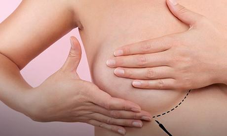 Novo tratamento pode ajudar no combate ao câncer de mama