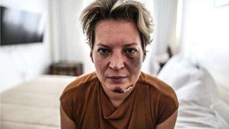 Joice Hasselmann é fotografada com hematomas no rosto em seu apartamento funcional em Brasília
