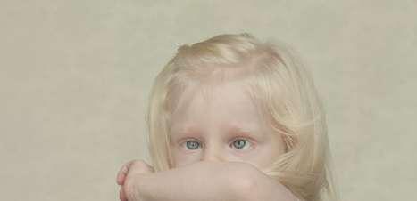 Você Sabia? Afrodescentes e indígenas podem ter albinismo?
