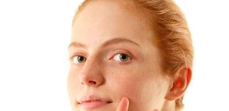 Dê fim às sardas brancas com lasers, cremes e filtro solar
