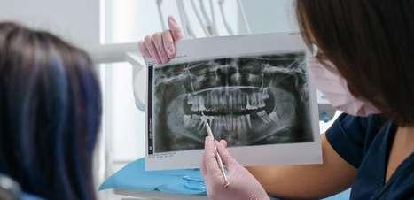 Saiba mais sobre cirurgia ortognática e a quem se destina