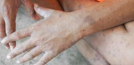 Sarna humana: Entenda as causas e o tratamento