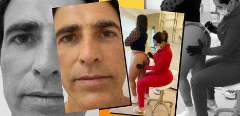 Detalhes da renovação do rosto deGianee pernas de Gretchen