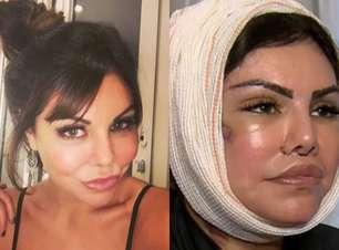 Veja o antes e depois de Liziane Gutierrez, de 'A Fazenda'