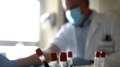 Estudos com anticorpos contra covid mostram bons resultados