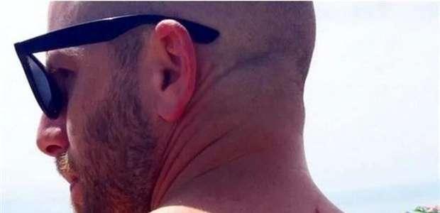 Ataque de tiburón lo salvó del cáncer