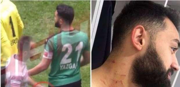 Jogador turco acusado de ferir adversários com uma ...