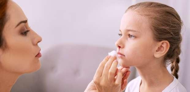 Sangramento nasal: conheça 7 ações simples que podem ajudar