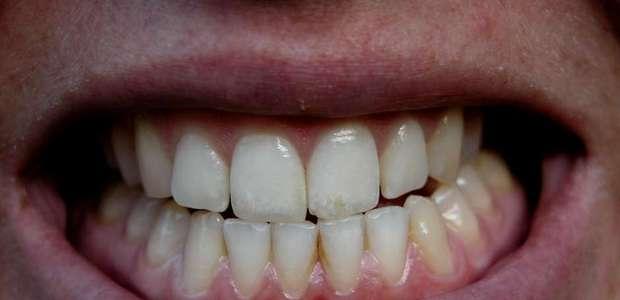 Mito ou Verdade? 11% dos brasileiros não tem dentes