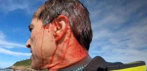 """Visitei a morte"", diz Carlos Burle após vaca na Ilha Mãe"