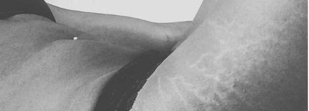 Perfil do Instagram divulga fotos de mulheres com estrias