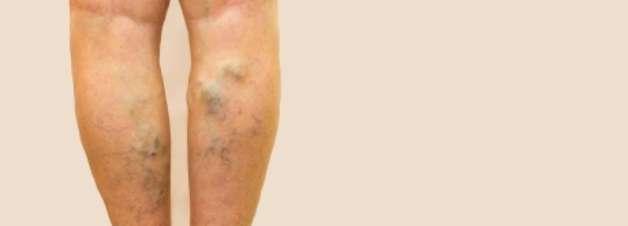 COVID-19 traz mais riscos de trombose do que vacinas