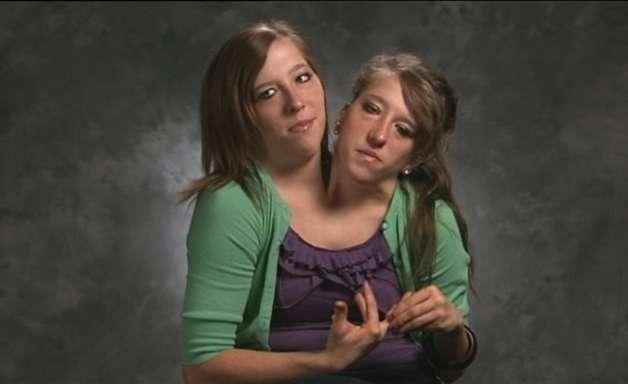Gêmeos siameses: por que duas pessoas nascem grudadas?