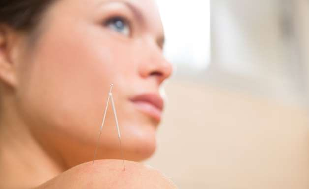 Técnicas de acupuntura tratam celulite, acne e até flacidez