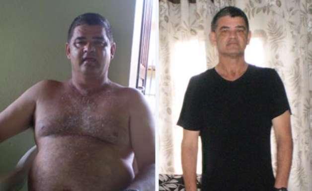 vc repórter: sem roupa para vestir, homem emagrece 23 kg