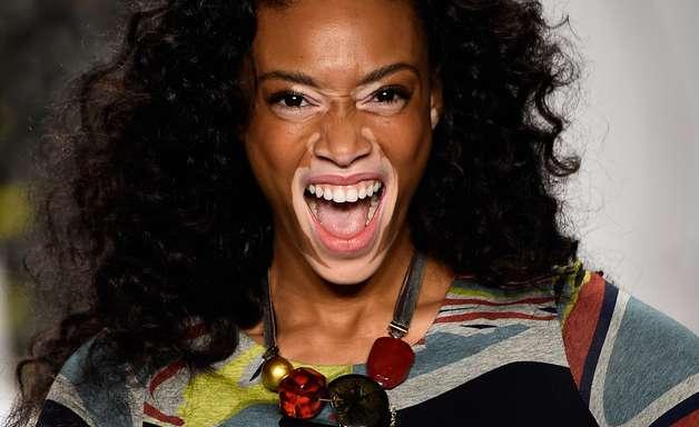 Modelo com vitiligo é destaque em passarela de Nova York