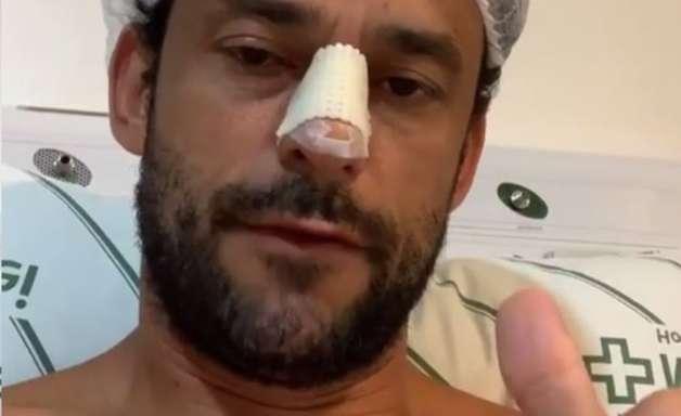 Fred é submetido a cirurgia no nariz após fratura em jogo-treino do Cruzeiro