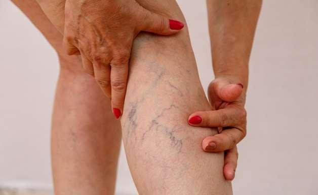 Trombose: sintomas e tratamento