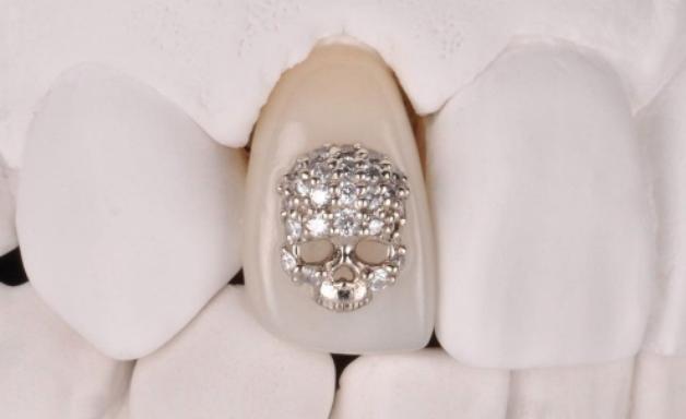 Baterista do Blink-182 coloca diamante de R$ 41 mil no dente
