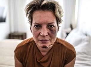 Polícia descarta agressão e diz que Joice sofreu queda