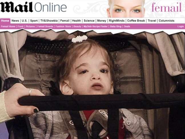 Apesar da idade, Brooke Greenberg mantém a aparência física e a cognição de uma criança